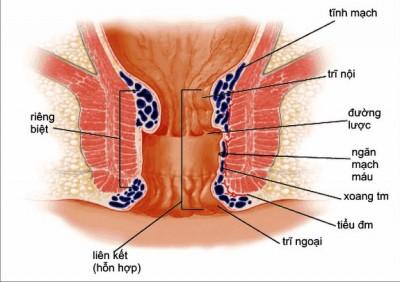 Nguyên nhân Bệnh trĩ nội