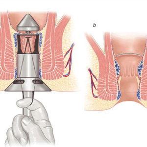 Các phương pháp điều trị bệnh trĩ nội