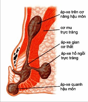 Các triệu chứng của Áp-xe hậu môn