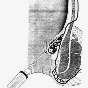 Chữa bệnh trĩ bằng thủ thuật chích xơ