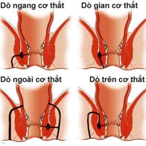 Rò hậu môn xuyên cơ thắt là gì