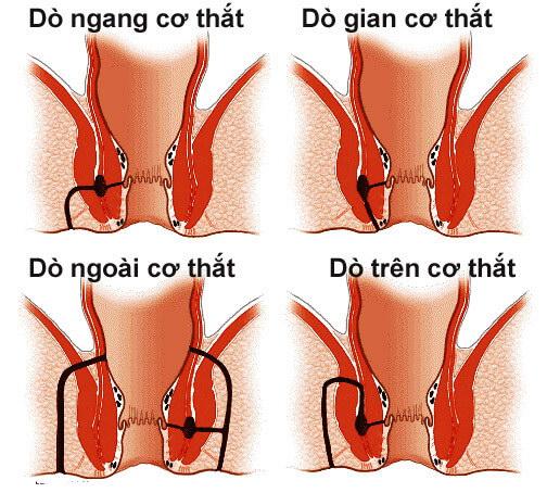 Rò hậu môn xuyên cơ thắt
