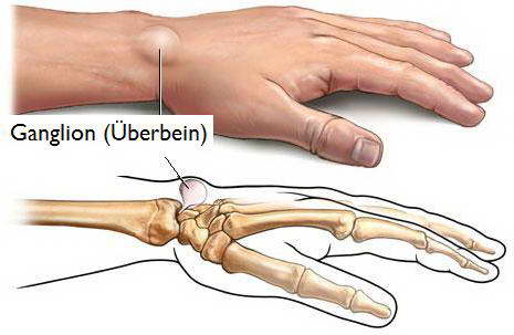 Nguyên nhân gây U nang bao hoạt dịch