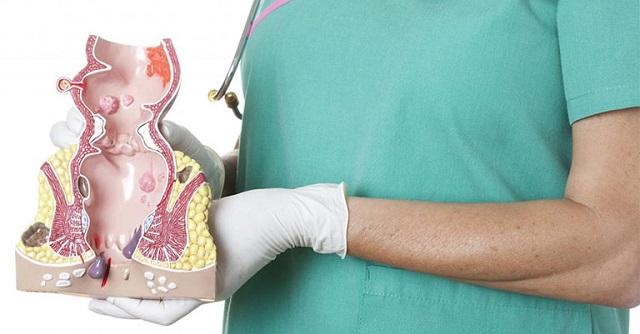 Trĩ huyết khối là gì, phân loại?