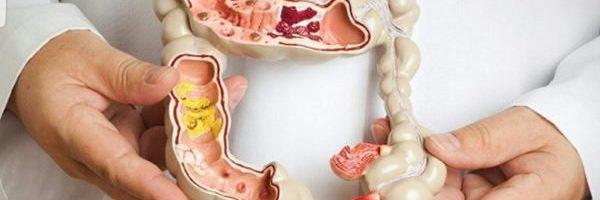 Nguyên nhân trĩ nội có polyp